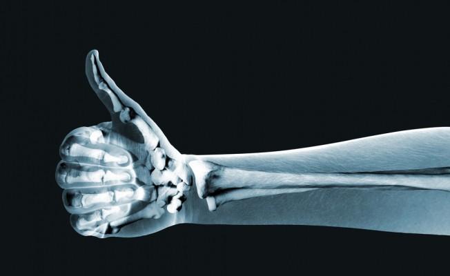 Почему хрустят суставы рук
